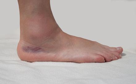 Schmerzen geschwollen umgeknickt fuß nicht Knöchelschmerzen