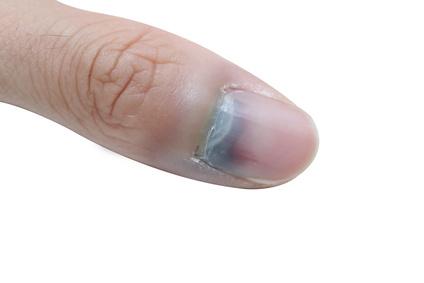 wie lange brauchen blaue flecken um zu heilen