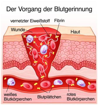 welche ursachen hat nasenbluten