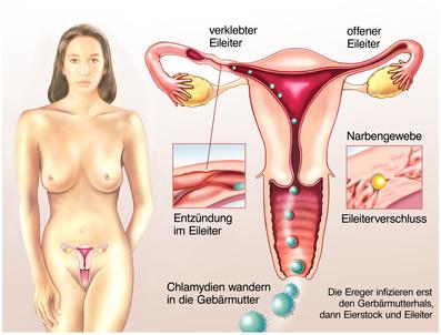 atemwegsinfektion durch chlamydien
