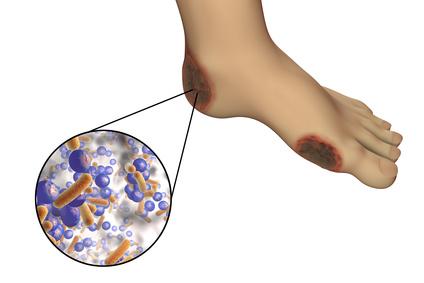 Diabetisches Fußsyndrom - Wundbehandlung diabetischer Fuss | DRACO