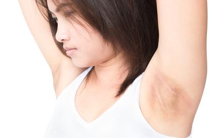 hautrötung zwischen der brust