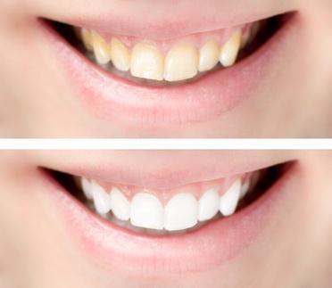 Zahnverfärbungen Ursachen
