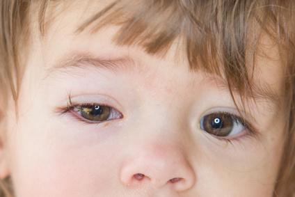 Eine Bindehautenzündung ist eine häufige Ursache für geschwollene Augen.  Häufig kommt es zusätzlich zu Lichtempfindlichkeit und zu einem  Fremdkörpergefühl ... c3ca0fe383