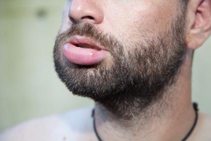 An schwillt allergie lippe Was verursacht