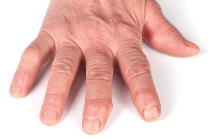 gelenkschmerzen finger was hilft