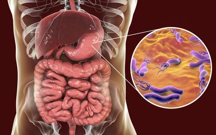 Helicobacter pylori – Ursachen, Beschwerden & Therapie | Gesundpedia.de