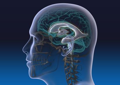 Hirnventrikel funktion therapie diagnose behandlung for Boden 4 ventrikel