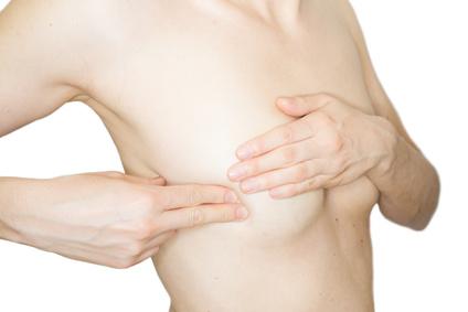 absonderungen aus der brust einseitig