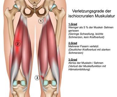 Muskelschmerzen am ganzen Körper - Ursachen, Behandlung..