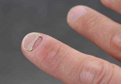 Wächst nicht nach fingernagel Geklemmter Fingernagel