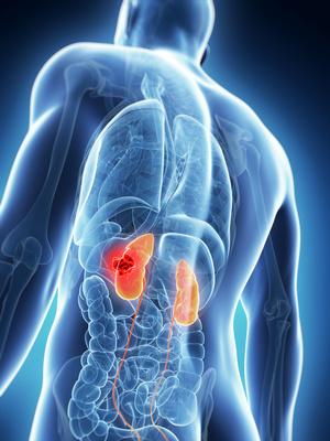 verursacht hausschimmel nierenbeschwerden