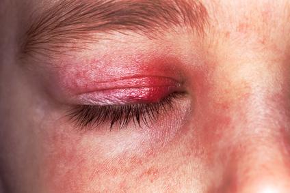augenhöhlen schmerzen und kopfschmerzen