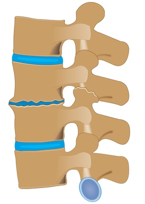 mehrsegmentale osteochondrose