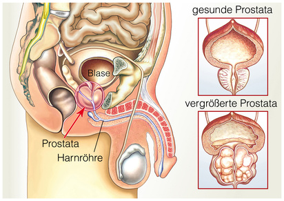 dimensioni prostata in ml Gránátalma előnyök a prosztatitis