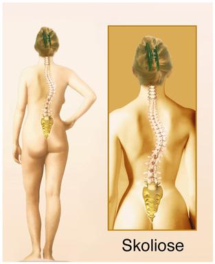 starke skoliose schmerzen