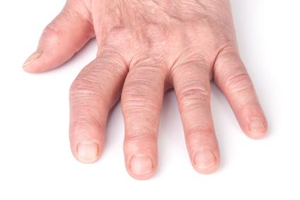 Arthritis im Daumen