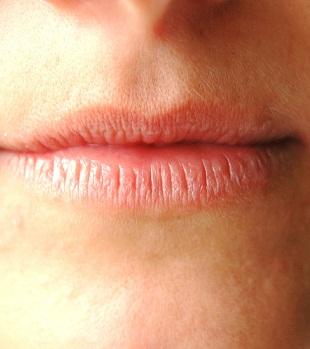 Dauerhaft Trockene Lippen