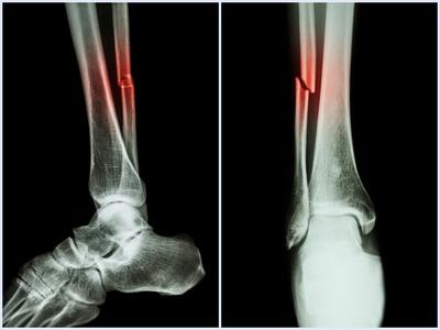 Gips lange gebrochen sprunggelenk wie Gebrochener Fuß