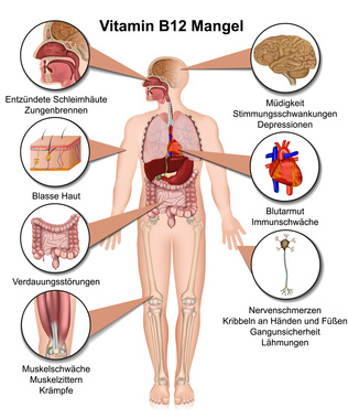 Ein Mangel An Vitamin B12 Hat Viele Folgen. Blasse Haut, Müdigkeit Und  Konzentrationsschwäche Sind Typische Symptome.