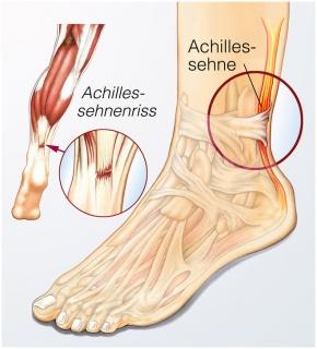 Achillessehnenriss
