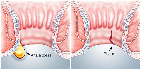 magenkrämpfe durchfall ursachen