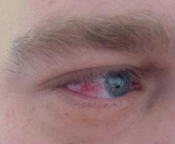 Augenentzündung: Ursachen, Behandlung, Krankheiten