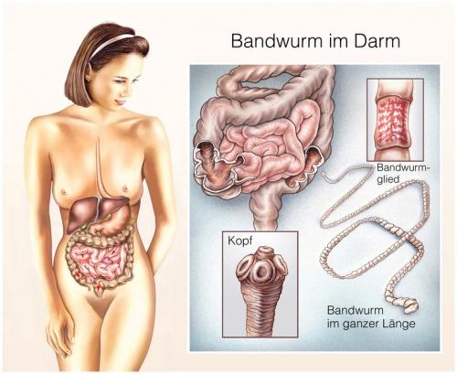 Wie der Würmer im menschlichen Organismus getötet ist