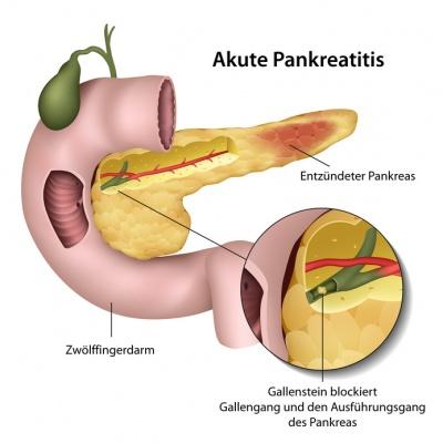 Diabetes durch Erkrankungen der Bauchspeicheldrüse | Diabetes Ratgeber