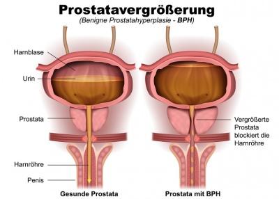 alpha rezeptorenblocker prostata
