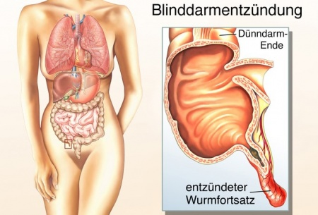 Blinddarm – Funktion, Aufbau & Beschwerden | Gesundpedia.de