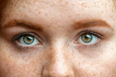 Braune Flecken im Gesicht