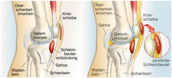 vorbeugung arthrose knie