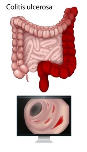 Colitis ulcerosa - Ursachen, Beschwerden & Therapie ...