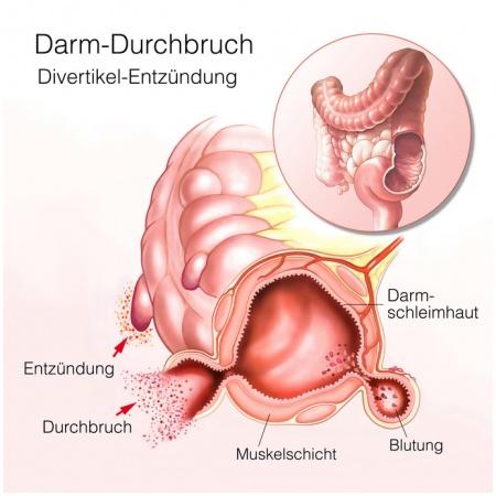 tumor im bauchraum anzeichen