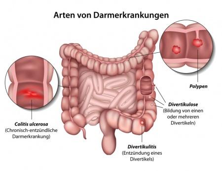 darmerkrankungen