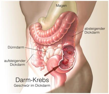 Dickdarmkrebs Kolonkarzinom Ursachen Beschwerden Therapie