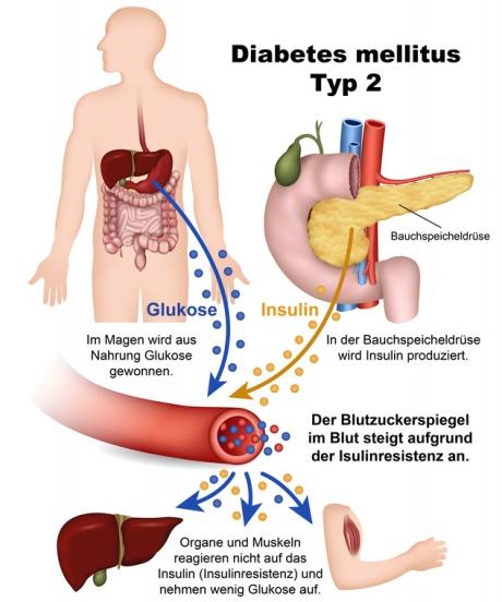 Beschwerden diabetes typ 2