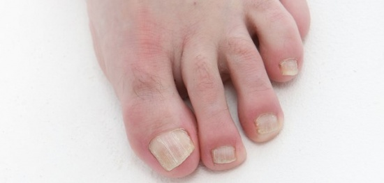 Der Biberstrahl der Behandlung der Schuppenflechte