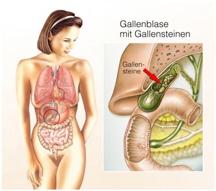 Gallenblasenentzündung: Ursachen, Risikofaktoren & Symptome