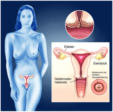 Gebärmuttermund