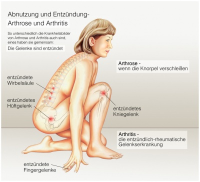 muskelschmerzen in den beinen symptome