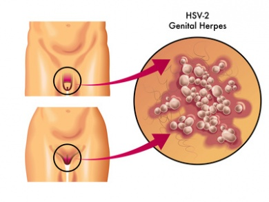 Ansteckung genitalis Genitalherpes: Ansteckung,