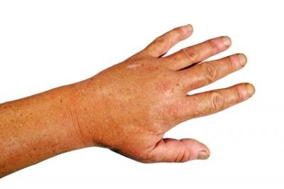 Verletzung Fingergelenk Einführung
