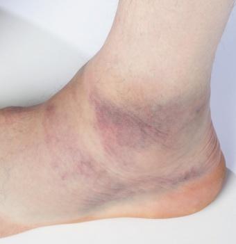 Fuß vertreten keine schwellung