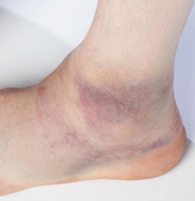 Bänderriss Fuß Symptome
