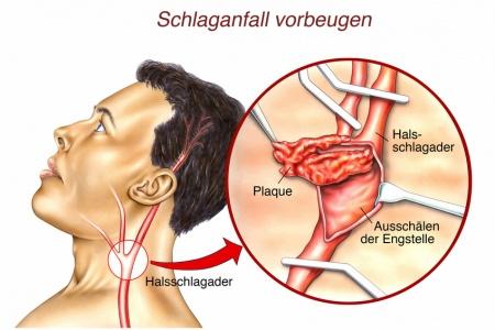 Halsschlagader Verkalkt Medikamente