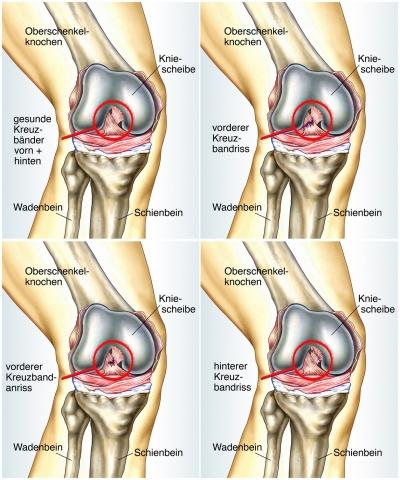 Knie (Kniegelenk): Funktion, Therapie, Diagnose, Behandlung, Anatomie