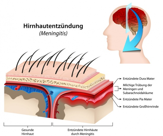 Hirnhaut – Funktion, Aufbau & Beschwerden | Gesundpedia.de