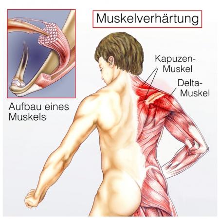 muskelschmerzen im oberarm und oberschenkel